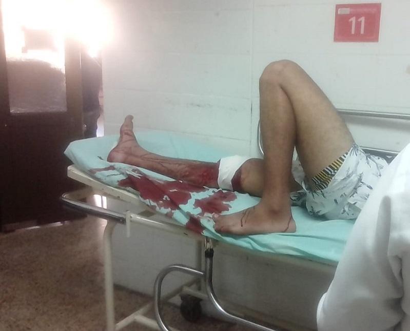 La herida Gustavo Noriega la sufrió en la pierna derecha.   FOTO/ CORTESÍA