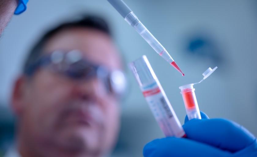El pronóstico es que los casos de covid-19 aumenten en la medida que se den más pruebas. Referencia/EL PILÓN